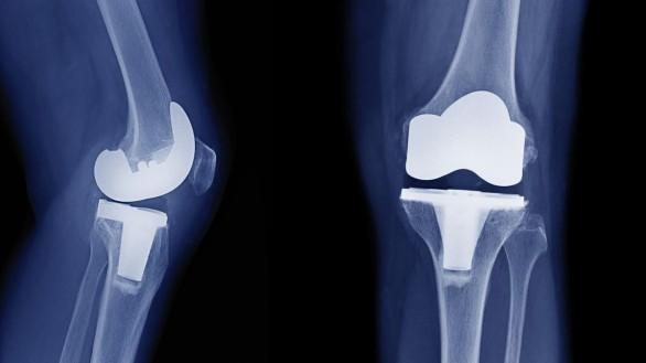 جراحی تعویض مفصل زانو را به موقع انجام دهید